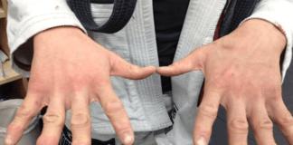 Finger pain Bjj