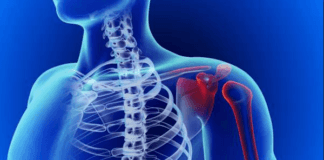BJJ Shoulder Injuries – Most Common Types and Treatment