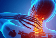 Bjj Neck pain - Types and prevention, BJJ neck Injuries